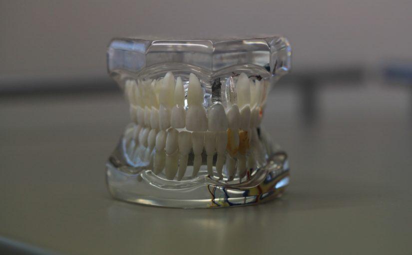 Zły sposób żywienia się to większe ubytki w zębach oraz również ich brak